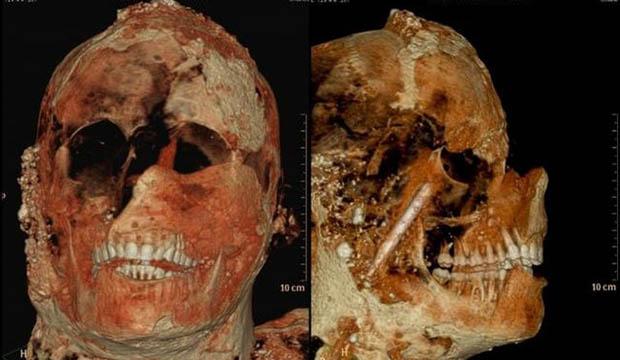 Dentes-Romanos