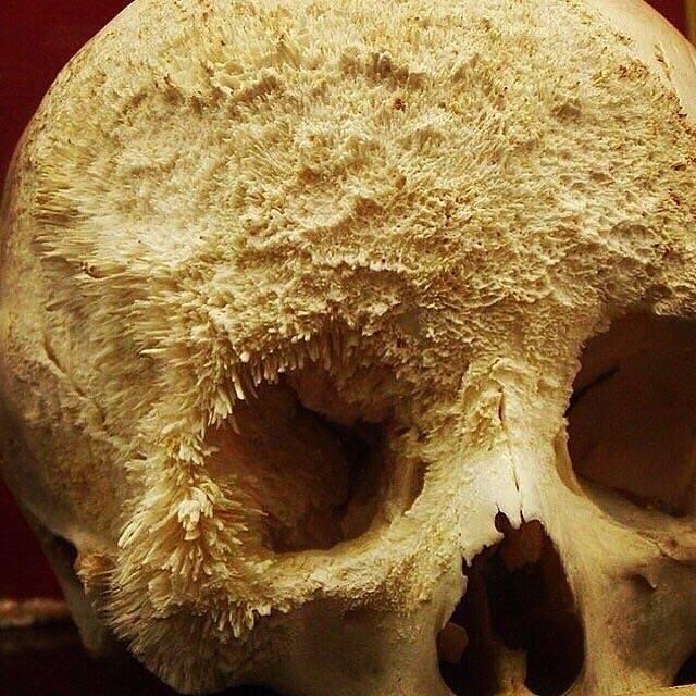 Cancer nos ossos