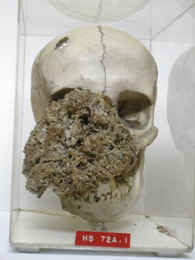 Um crânio de 1829 com um tumor facial causado por neurofibromatose.