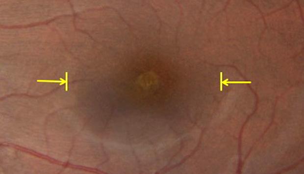 Dano no centro da retina em amarelo